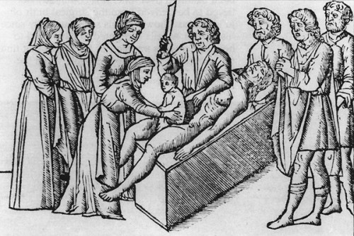 The extraction of Asclepius from the abdomen of his mother Coronis by his father Apollo. Woodcut from the 1549 edition of Alessandro Beneditti's De Re Medica.